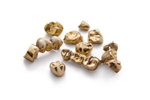 To sell dental gold in Freiburg to Edelmetalle direkt